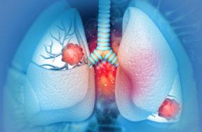 Verdubbelde ziektevrije overleving met osimertinib bij niet-kleincellig longcarcinoom