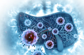 Atezolizumab + bevacizumab bij inoperabele hepatocellulair carcinoom